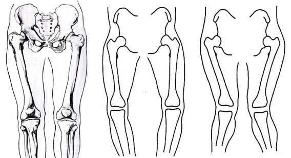 μεταλλικός μηροκνημικός νάρθηκας οστεοαρθρίτιδος γόνατος oik/οα μεταλλικοσ